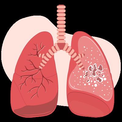Туберкулез: пути передачи, симптомы, профилактика